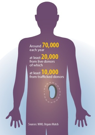 Kidney transplants by numbers