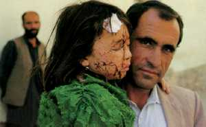 Daily terror: Kabul civilians in the cross-fire.