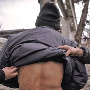 An Afghan refugee shows scars on his back, which he says were caused by the violent force used by Croatian border police to deter him from making a crossing from Bosnia.Credit: Michele Amoruso